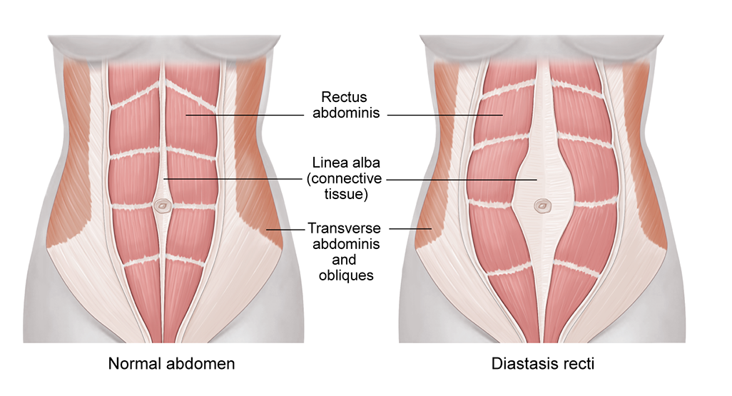 Image of Diastasis Recti